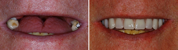 A 78 year old patient who struggle to eat for several years and was told can only have denture. He visited us for 2nd opinion. We recommended All-on-4 as this treatment can be provided without bone grafting in elderly patients. This treatment has improved both chewing and speech for the patient.