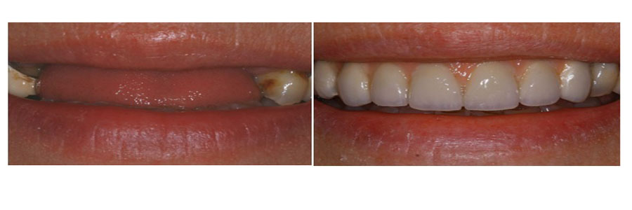 replacing multiple teeth